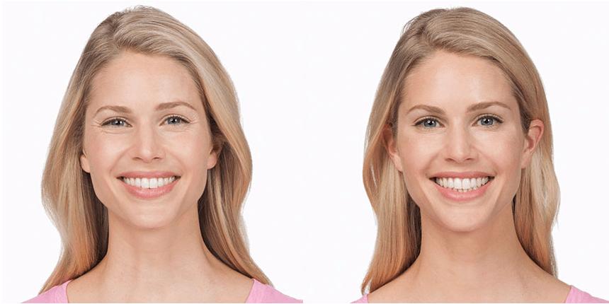 Botox - Premier MediSpa