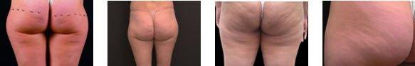 BTL Cellutone Cellulite Removal
